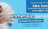 Ahmet Alp bebeğe umut olalım